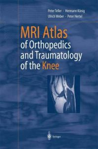 MRI Atlas of Orthopedics and Traumatology of the Knee – Peter Teller, Hermann König, Ulrich Weber, Peter Hertel, B. Herwig [ePub & Kindle] [English]